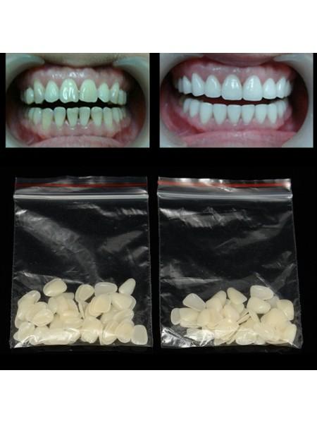 Ультратонкие виниры для верхних передних зубов (100 шт.)