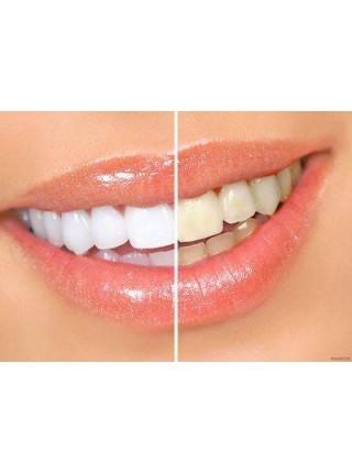 Зубной отбеливатель WHITE LIGHT
